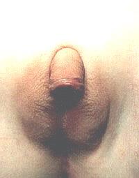 Наружные гениталиии девочки с адрено-генитальным синдромом до феминизирующей операции - фото Автора