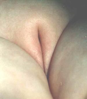 Наружные гениталии девочки с адрено-генитальным синдромом после феминизирующей операции - фото Автора